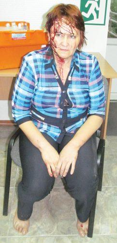 Врачи ЦГБ диагностировали у продавца Анжелики Третьяковой закрытую черепно-мозговую травму. Женщине наложено три шва